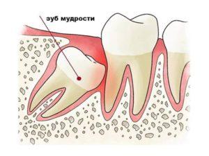 причины удаления зубов