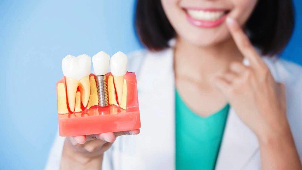 Кому рекомендована имплантация зуба